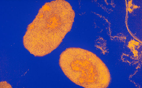 Tos ferina bacteria bordetella pertussis